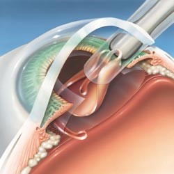 Insertion of an intraocular lens into the eye